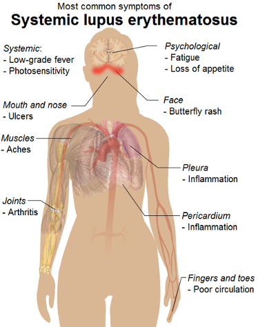 Common symptoms of Systemic Lupus Erythematosus