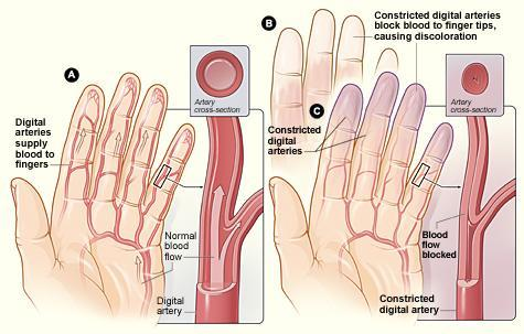 Raynaud's image of hands