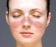 Acute cutaneous lupus malar rash on face